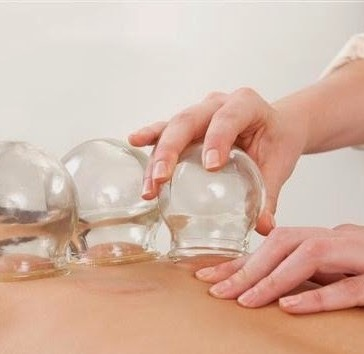 Hijama Therapy is The Best Medicine